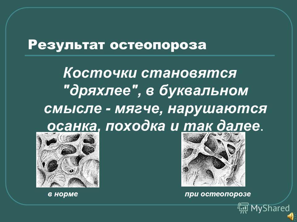 Результат остеопороза Косточки становятся дряхлее, в буквальном смысле - мягче, нарушаются осанка, походка и так далее. в норме при остеопорозе