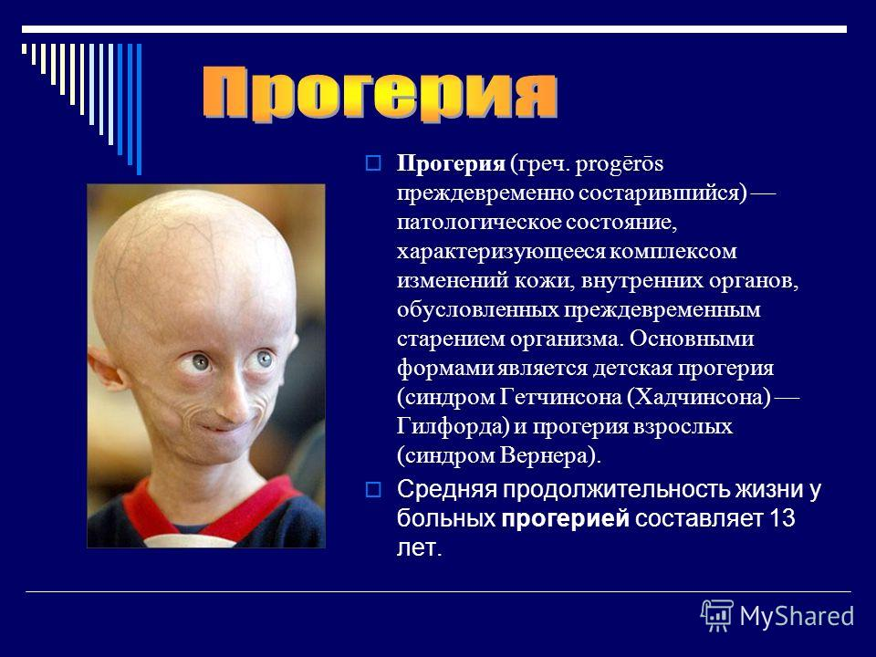 Синдром Гунтера