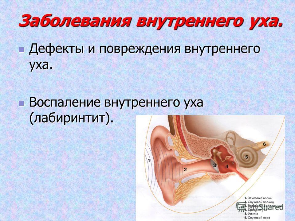 Заболевания внутреннего уха. Дефекты и повреждения внутреннего уха. Дефекты и повреждения внутреннего уха. Воспаление внутреннего уха (лабиринтит). Воспаление внутреннего уха (лабиринтит).