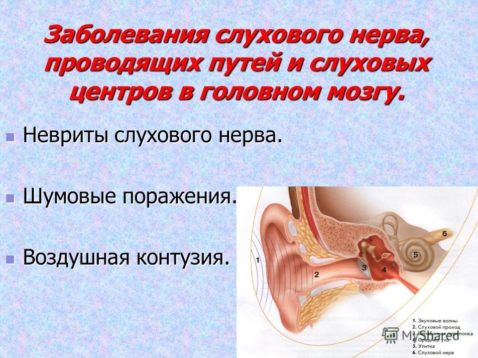 Заболевания слухового нерва, проводящих путей и слуховых центров в головном мозгу. Невриты слухового нерва. Невриты слухового нерва. Шумовые поражения. Шумовые поражения. Воздушная контузия. Воздушная контузия.