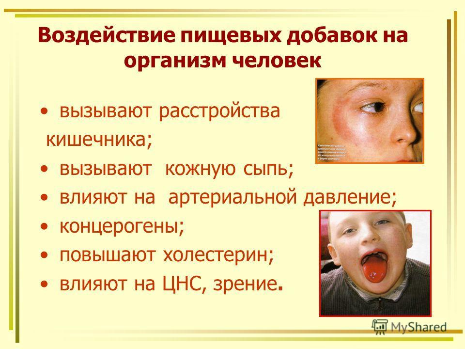 Воздействие пищевых добавок на организм человек вызывают расстройства кишечника; вызывают кожную сыпь; влияют на артериальной давление; концерогены; повышают холестерин; влияют на ЦНС, зрение.