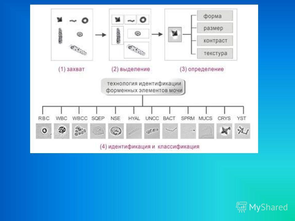 ХАРАКТЕРИСТИКИ Автоматически определяемые форменные элементы: эритроциты, лейкоциты, лейкоцитарные сгустки, гиалиновые цилиндры, патологические цилиндры, бактерии, squamous клетки эпителия, non- squamous клетки эпителия, грибы, кристаллы, мукус, спер