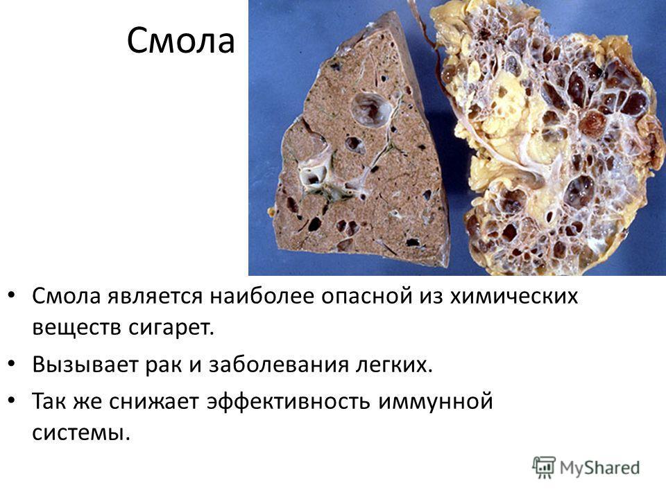 Смола Смола является наиболее опасной из химических веществ сигарет. Вызывает рак и заболевания легких. Так же снижает эффективность иммунной системы.