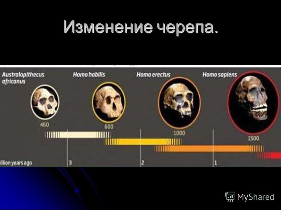 Изменение черепа.