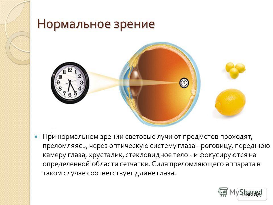 Нормальное зрение При нормальном зрении световые лучи от предметов проходят, преломляясь, через оптическую систему глаза - роговицу, переднюю камеру глаза, хрусталик, стекловидное тело - и фокусируются на определенной области сетчатки. Сила преломляю