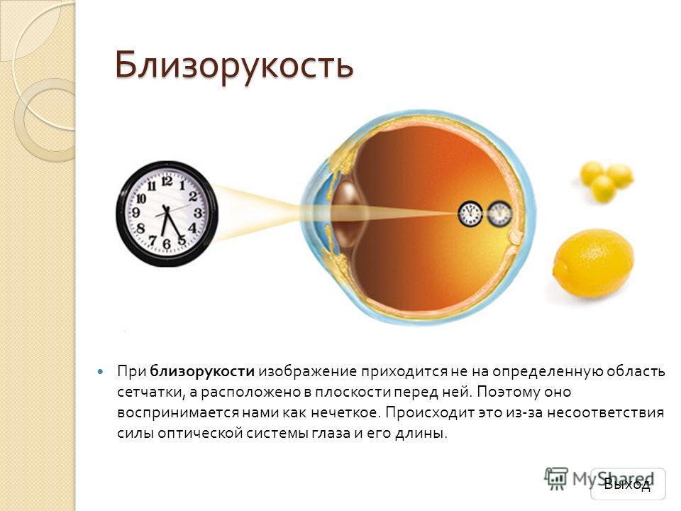 Близорукость При близорукости изображение приходится не на определенную область сетчатки, а расположено в плоскости перед ней. Поэтому оно воспринимается нами как нечеткое. Происходит это из - за несоответствия силы оптической системы глаза и его дли