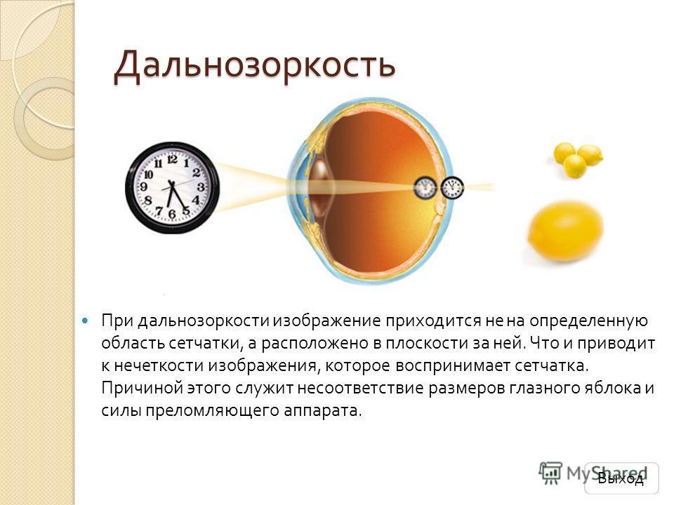 Дальнозоркость При дальнозоркости изображение приходится не на определенную область сетчатки, а расположено в плоскости за ней. Что и приводит к нечеткости изображения, которое воспринимает сетчатка. Причиной этого служит несоответствие размеров глаз
