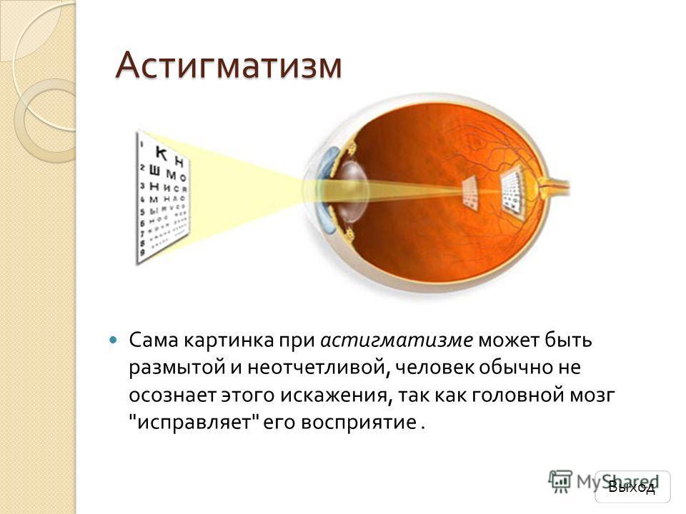 Астигматизм Сама картинка при астигматизме может быть размытой и неотчетливой, человек обычно не осознает этого искажения, так как головной мозг  исправляет  его восприятие. Выход