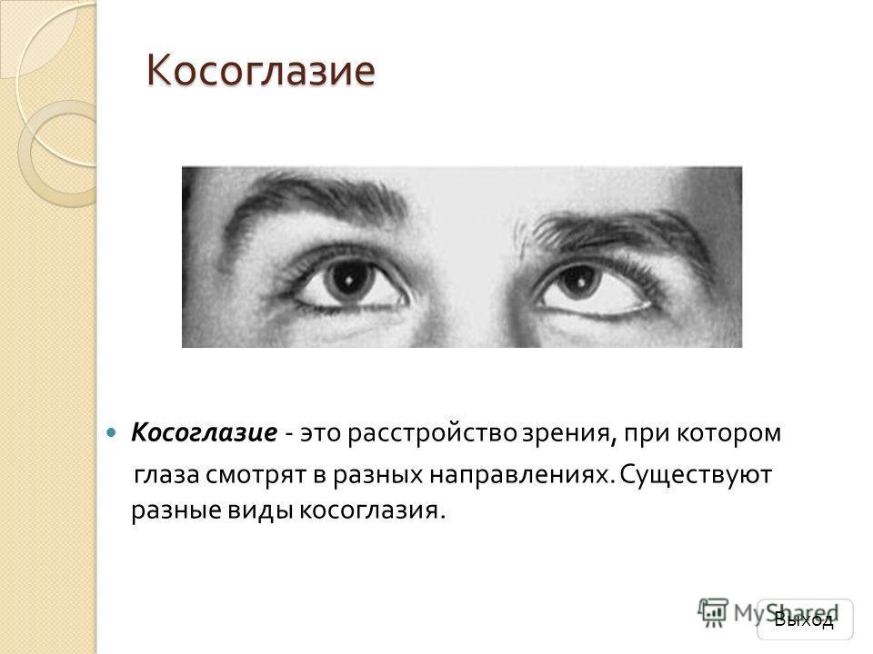 Косоглазие Косоглазие Косоглазие - это расстройство зрения, при котором глаза смотрят в разных направлениях. Существуют разные виды косоглазия. Выход