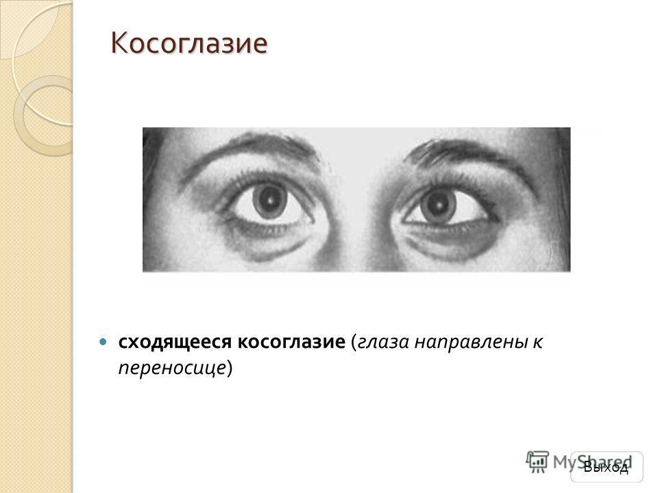 Косоглазие сходящееся косоглазие ( глаза направлены к переносице ) Выход