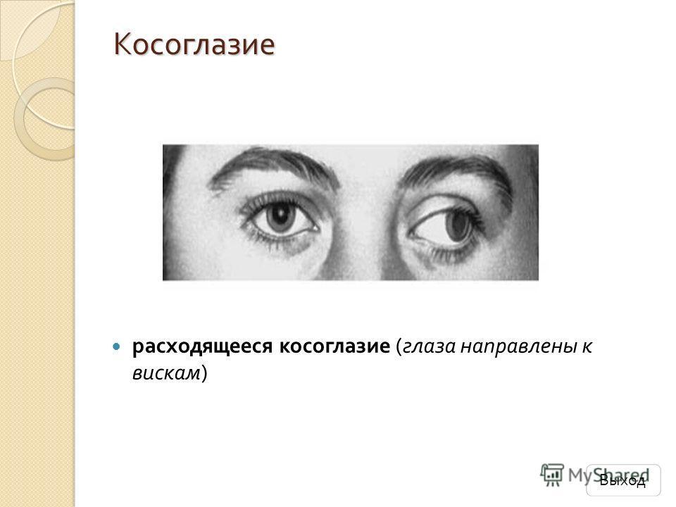 Косоглазие расходящееся косоглазие ( глаза направлены к вискам ) Выход
