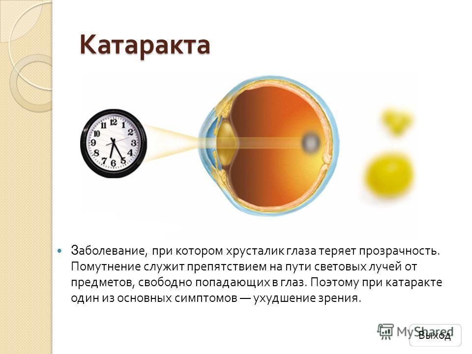 Катаракта З аболевание, при котором хрусталик глаза теряет прозрачность. Помутнение служит препятствием на пути световых лучей от предметов, свободно попадающих в глаз. Поэтому при катаракте один из основных симптомов ухудшение зрения. Выход