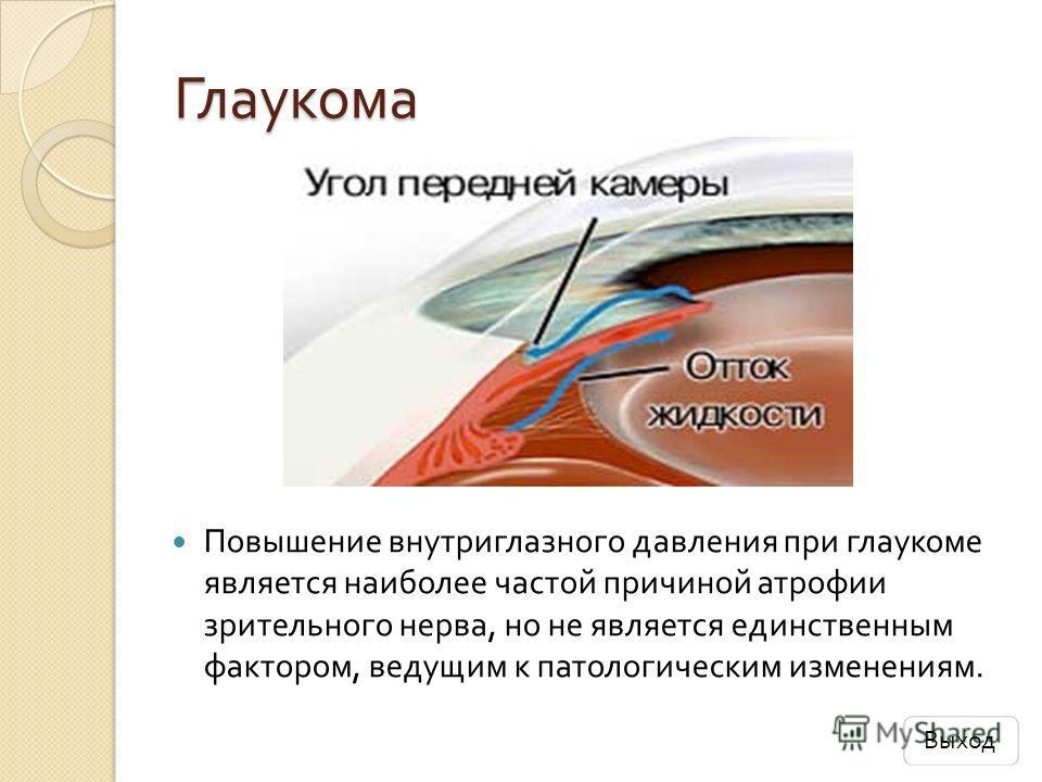 Глаукома Повышение внутриглазного давления при глаукоме является наиболее частой причиной атрофии зрительного нерва, но не является единственным фактором, ведущим к патологическим изменениям. Выход