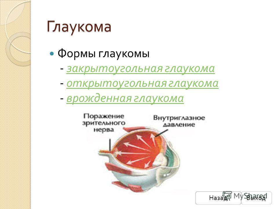 Глаукома Формы глаукомы - закрытоугольная глаукома - открытоугольная глаукома - врожденная глаукома закрытоугольная глаукома открытоугольная глаукома врожденная глаукома НазадВыход