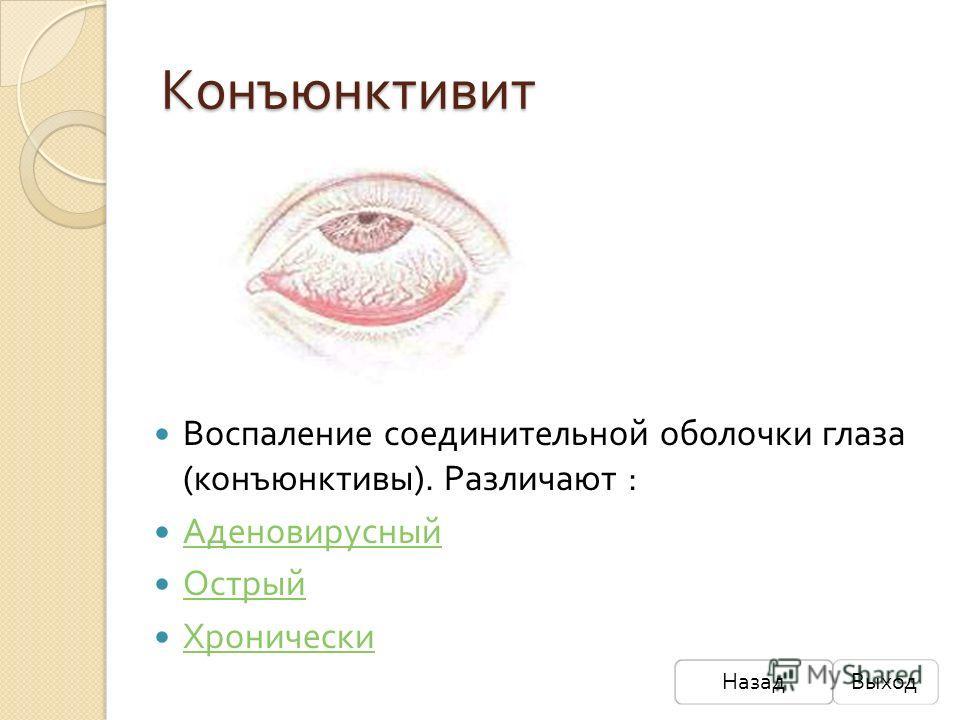 Конъюнктивит Воспаление соединительной оболочки глаза ( конъюнктивы ). Различают : Аденовирусный Острый Хронически НазадВыход