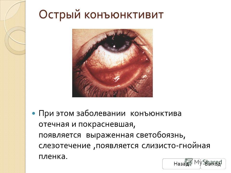 Острый конъюнктивит При этом заболевании конъюнктива отечная и покрасневшая, появляется выраженная светобоязнь, слезотечение, появляется слизисто - гнойная пленка. НазадВыход