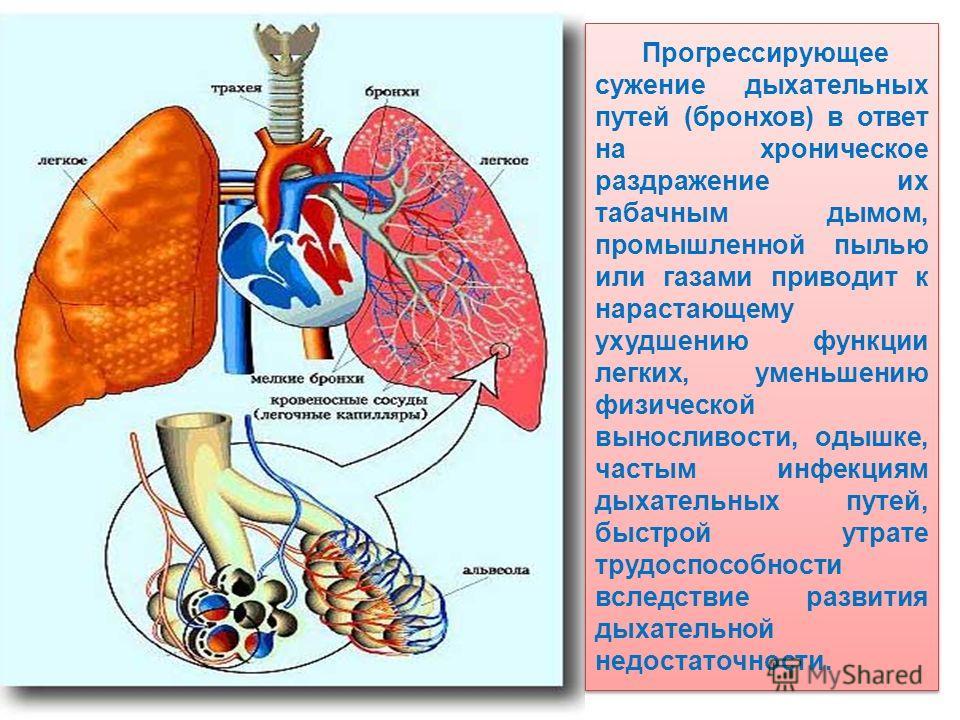 Прогрессирующее сужение дыхательных путей (бронхов) в ответ на хроническое раздражение их табачным дымом, промышленной пылью или газами приводит к нарастающему ухудшению функции легких, уменьшению физической выносливости, одышке, частым инфекциям дых