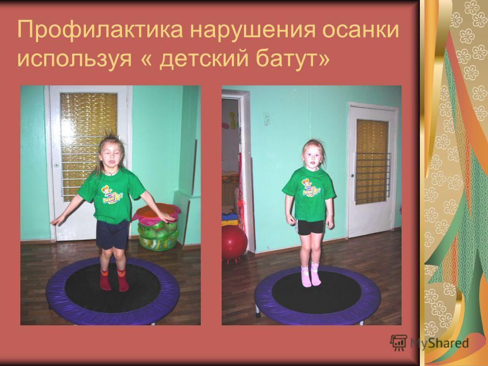 Профилактика нарушения осанки используя « детский батут»