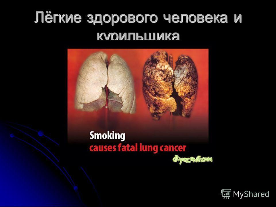 Лёгкие здорового человека и курильщика