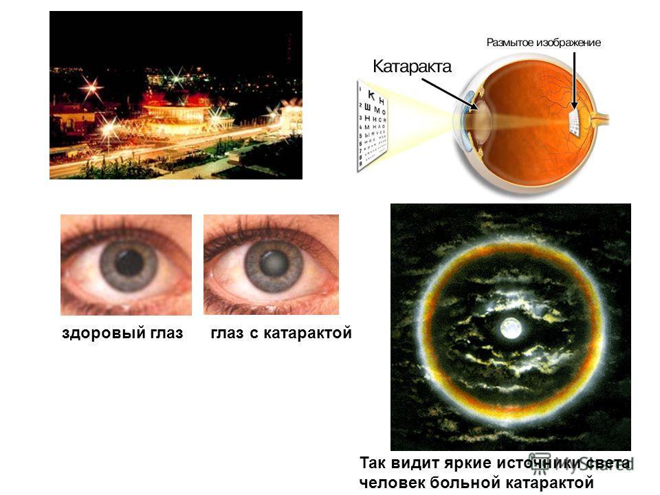 здоровый глазглаз с катарактой Так видит яркие источники света человек больной катарактой