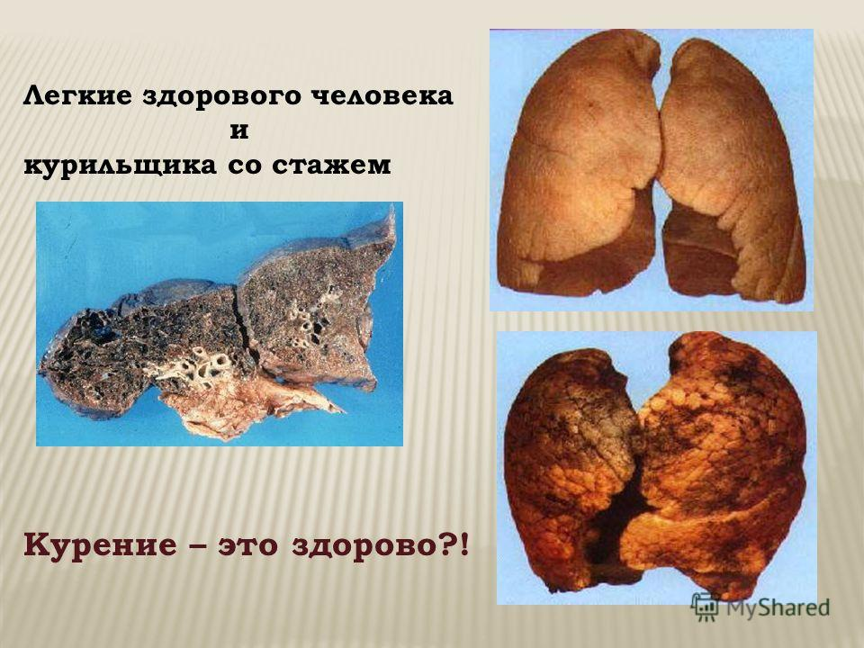Легкие здорового человека и курильщика со стажем Курение – это здорово?!