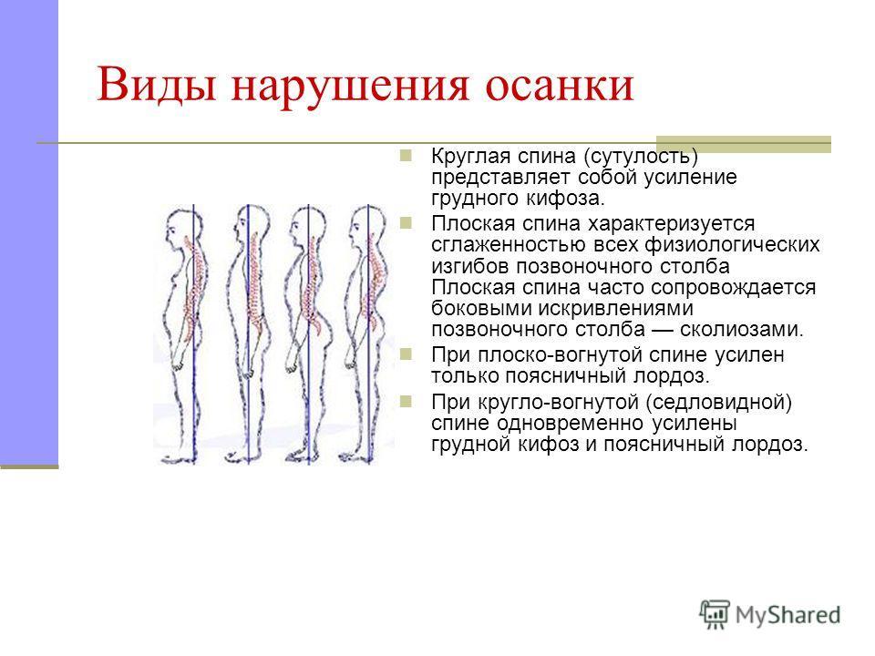 Виды нарушения осанки Круглая спина (сутулость) представляет собой усиление грудного кифоза. Плоская спина характеризуется сглаженностью всех физиологических изгибов позвоночного столба Плоская спина часто сопровождается боковыми искривлениями позвон