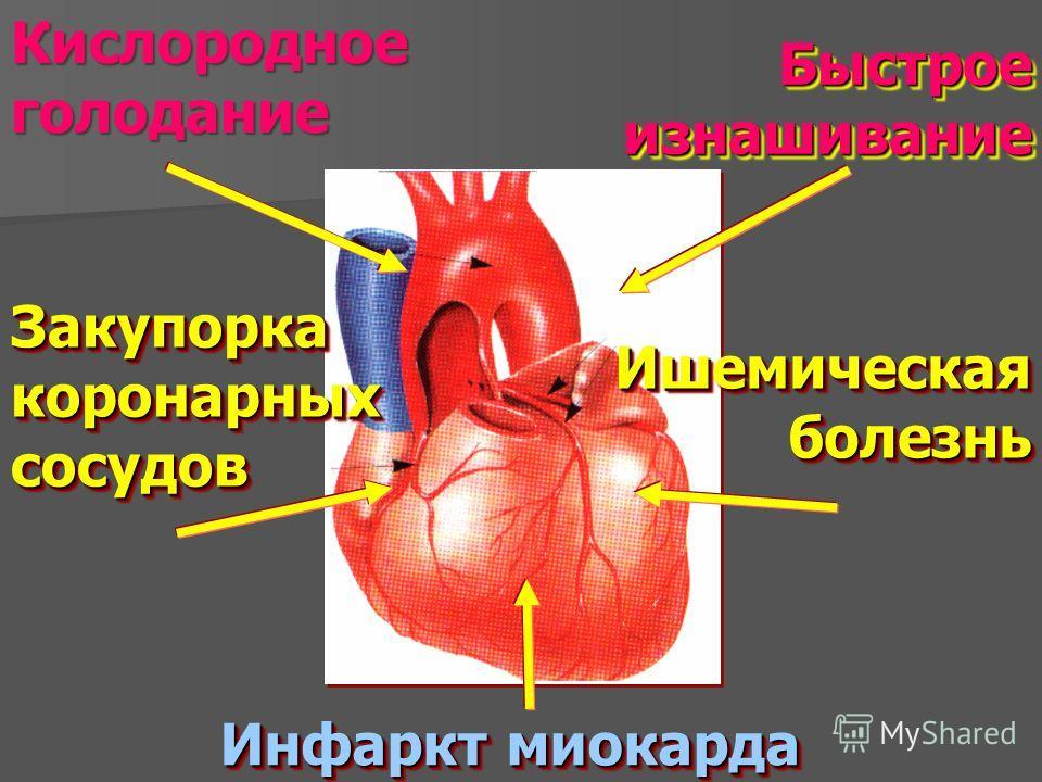 Быстрое изнашивание Закупорка коронарных сосудов Инфаркт миокарда Ишемическая болезнь Кислородное голодание
