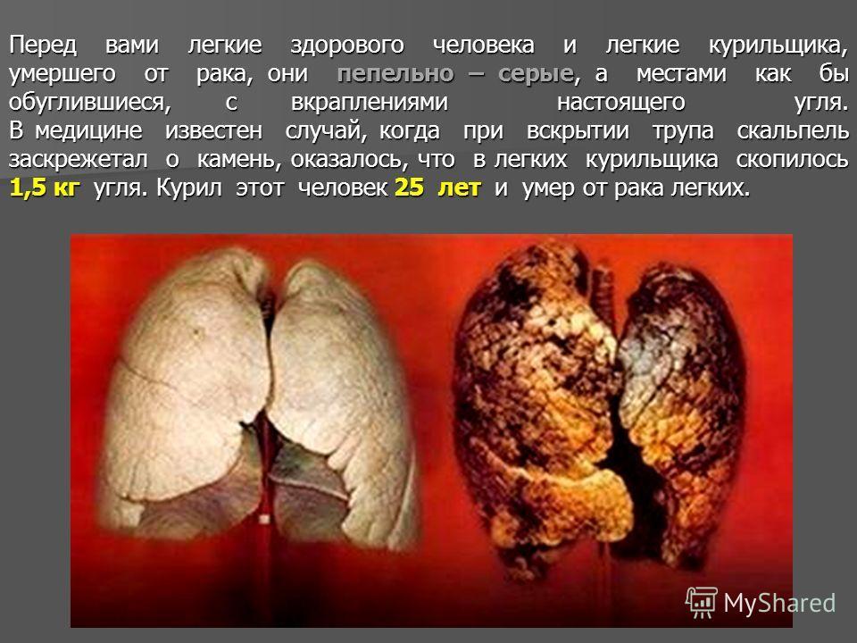Перед вами легкие здорового человека и легкие курильщика, умершего от рака, они пепельно – серые, а местами как бы обуглившиеся, с вкраплениями настоящего угля. В медицине известен случай, когда при вскрытии трупа скальпель заскрежетал о камень, оказ