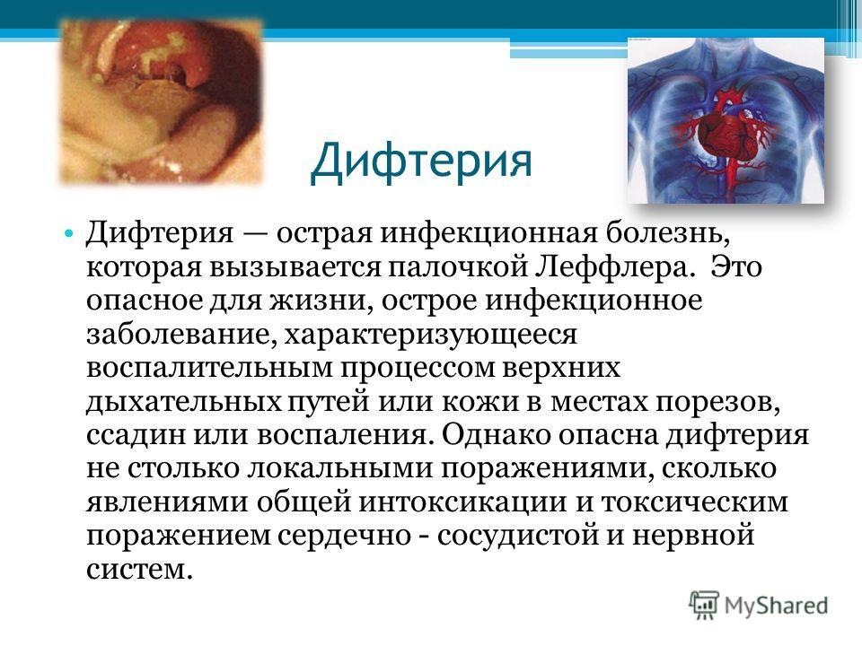 Дифтерия Дифтерия острая инфекционная болезнь, которая вызывается палочкой Леффлера. Это опасное для жизни, острое инфекционное заболевание, характеризующееся воспалительным процессом верхних дыхательных путей или кожи в местах порезов, ссадин или во