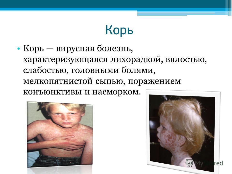 Корь Корь вирусная болезнь, характеризующаяся лихорадкой, вялостью, слабостью, головными болями, мелкопятнистой сыпью, поражением конъюнктивы и насморком.