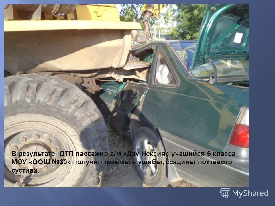 В результате ДТП пассажир а/м «Дэу Нексия» учащийся 6 класса МОУ «ООШ 30» получил травмы – ушибы, ссадины локтевого сустава.