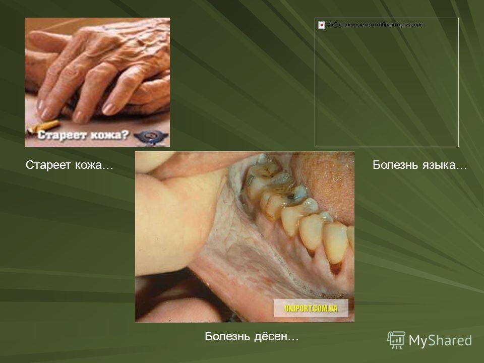 Стареет кожа…Болезнь языка… Болезнь дёсен…