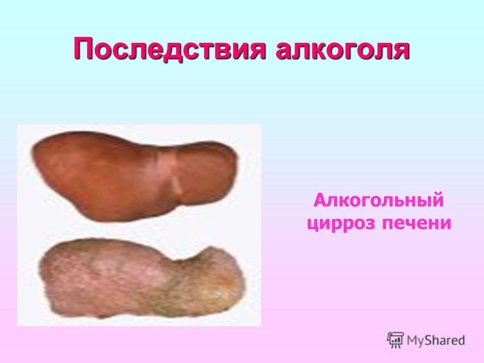 Последствия алкоголя Алкогольный цирроз печени