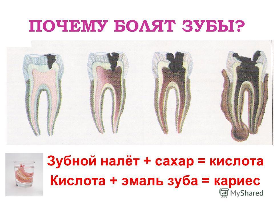 ПОЧЕМУ БОЛЯТ ЗУБЫ? Зубной налёт + сахар = кислота Кислота + эмаль зуба = кариес