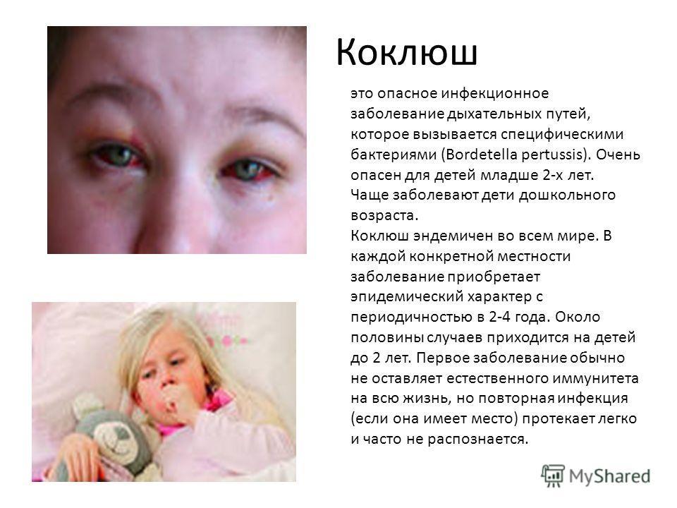 Коклюш это опасное инфекционное заболевание дыхательных путей, которое вызывается специфическими бактериями (Bordetella pertussis). Очень опасен для детей младше 2-х лет. Чаще заболевают дети дошкольного возраста. Коклюш эндемичен во всем мире. В каж