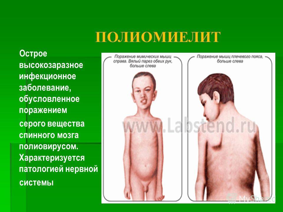Острое высокозаразное инфекционное заболевание, обусловленное поражением серого вещества спинного мозга полиовирусом. Характеризуется патологией нервной системы