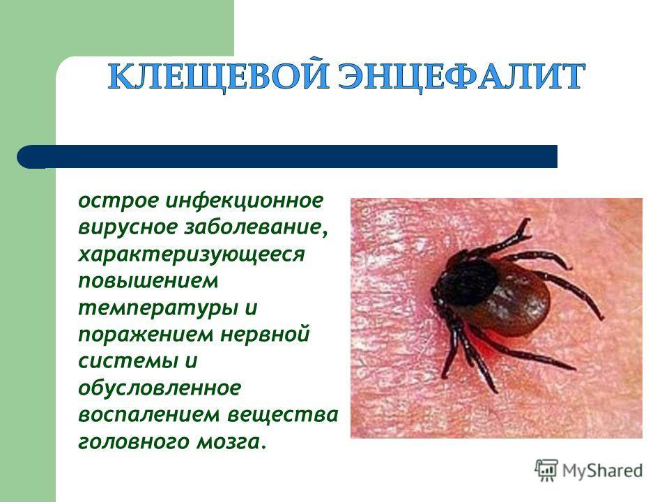 острое инфекционное вирусное заболевание, характеризующееся повышением температуры и поражением нервной системы и обусловленное воспалением вещества головного мозга.