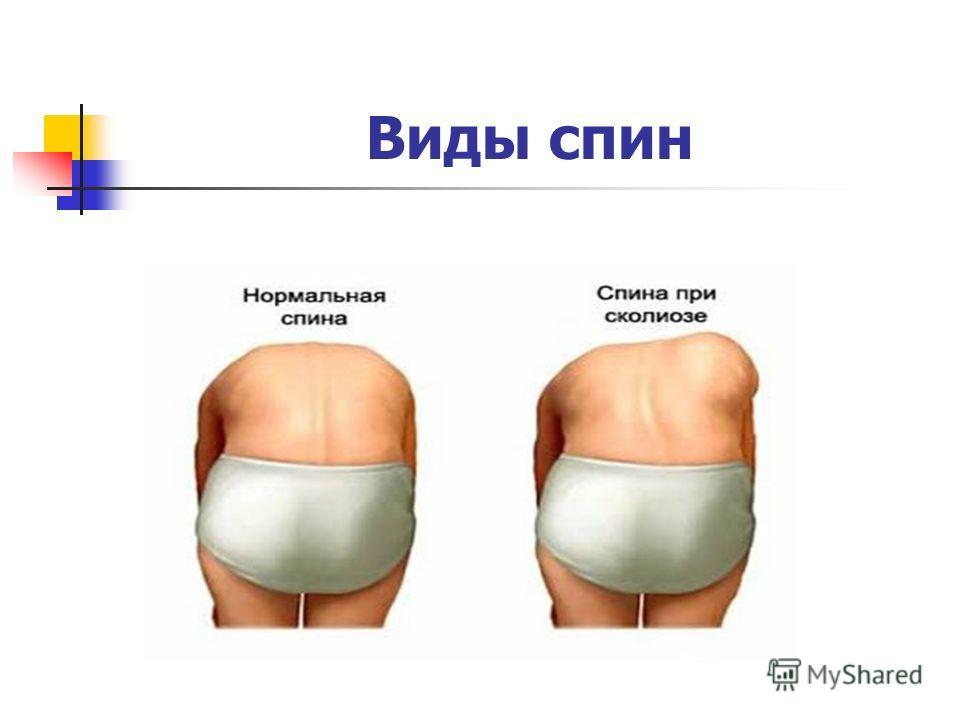 Виды спин