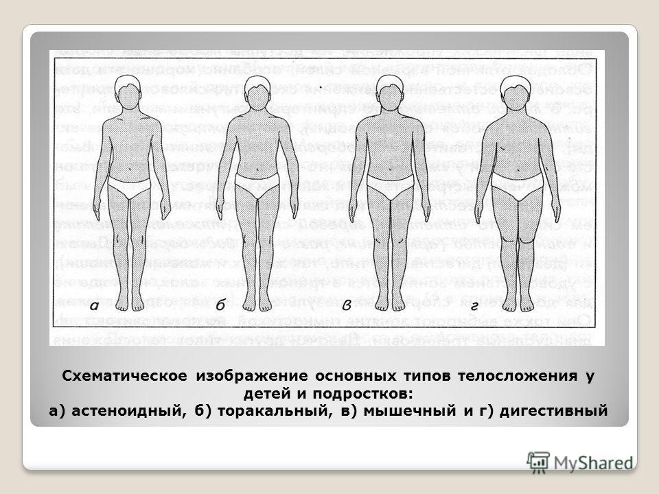 Схематическое изображение основных типов телосложения у детей и подростков: а) астеноидный, б) торакальный, в) мышечный и г) дигестивный