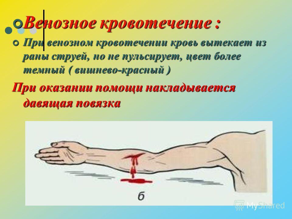 Венозное кровотечение : Венозное кровотечение : При венозном кровотечении кровь вытекает из раны струей, но не пульсирует, цвет более темный ( вишнево-красный ) При венозном кровотечении кровь вытекает из раны струей, но не пульсирует, цвет более тем