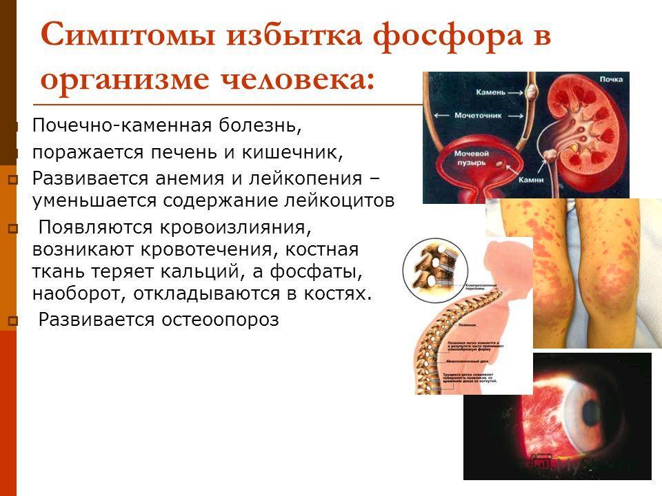Симптомы избытка фосфора в организме человека: Почечно-каменная болезнь, поражается печень и кишечник, Развивается анемия и лейкопения – уменьшается содержание лейкоцитов Появляются кровоизлияния, возникают кровотечения, костная ткань теряет кальций,