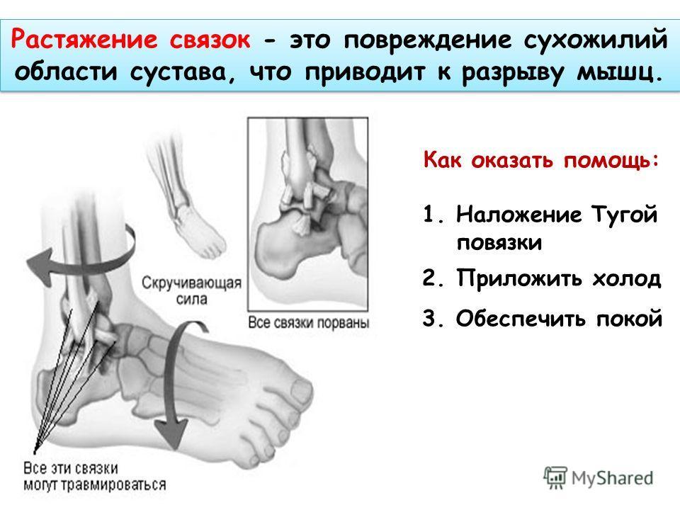 Растяжение связок - это повреждение сухожилий области сустава, что приводит к разрыву мышц. Как оказать помощь: 1.Наложение Тугой повязки 2.Приложить холод 3.Обеспечить покой