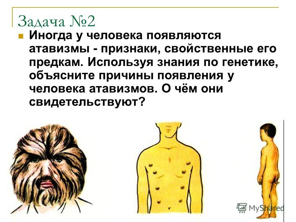 Задача 2 Иногда у человека появляются атавизмы - признаки, свойственные его предкам. Используя знания по генетике, объясните причины появления у человека атавизмов. О чём они свидетельствуют?