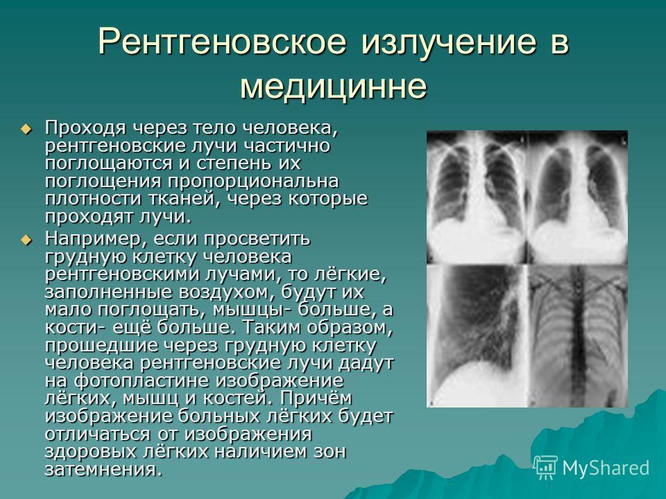 Рентгеновское излучение в медицинне Проходя через тело человека, рентгеновские лучи частично поглощаются и степень их поглощения пропорциональна плотности тканей, через которые проходят лучи. Проходя через тело человека, рентгеновские лучи частично п