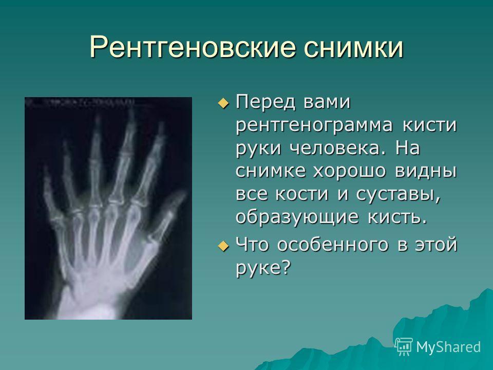 Рентгеновские снимки Перед вами рентгенограмма кисти руки человека. На снимке хорошо видны все кости и суставы, образующие кисть. Перед вами рентгенограмма кисти руки человека. На снимке хорошо видны все кости и суставы, образующие кисть. Что особенн