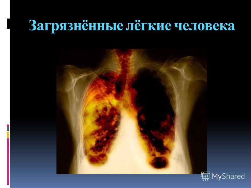Загрязнённые лёгкие человека