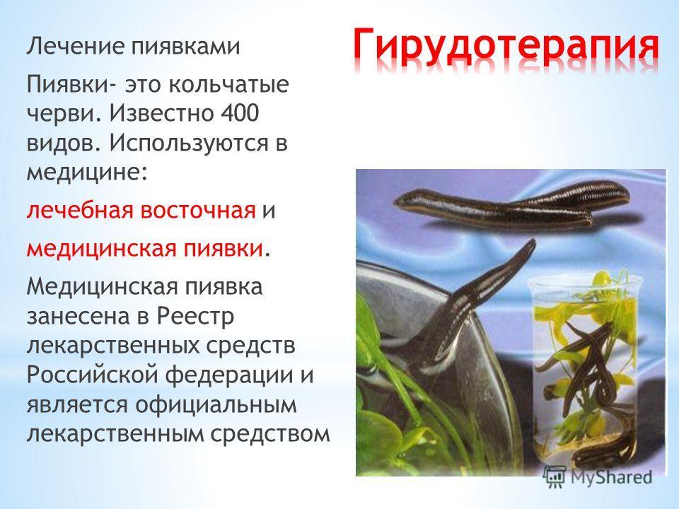 Лечение пиявками Пиявки- это кольчатые черви. Известно 400 видов. Используются в медицине: лечебная восточная и медицинская пиявки. Медицинская пиявка занесена в Реестр лекарственных средств Российской федерации и является официальным лекарственным с