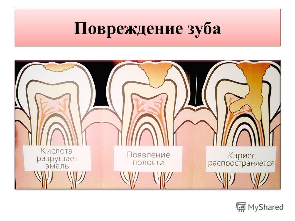 Повреждение зуба