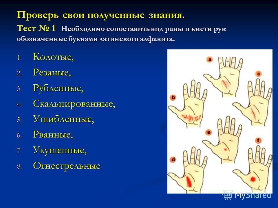 Проверь свои полученные знания. Тест 1 Необходимо сопоставить вид раны и кисти рук обозначенные буквами латинского алфавита. 1. Колотые, 2. Резаные, 3. Рубленные, 4. Скальпированные, 5. Ушибленные, 6. Рванные, 7. Укушенные, 8. Огнестрельные