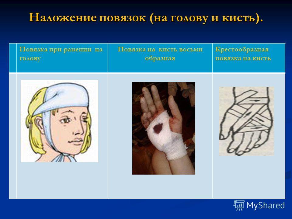 Наложение повязок (на голову и кисть). Повязка при ранении на голову Повязка на кисть восьми образная Крестообразная повязка на кисть